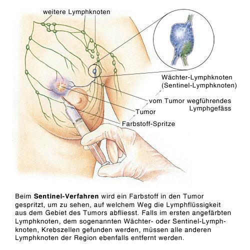 Brustkrebs-Sentinel