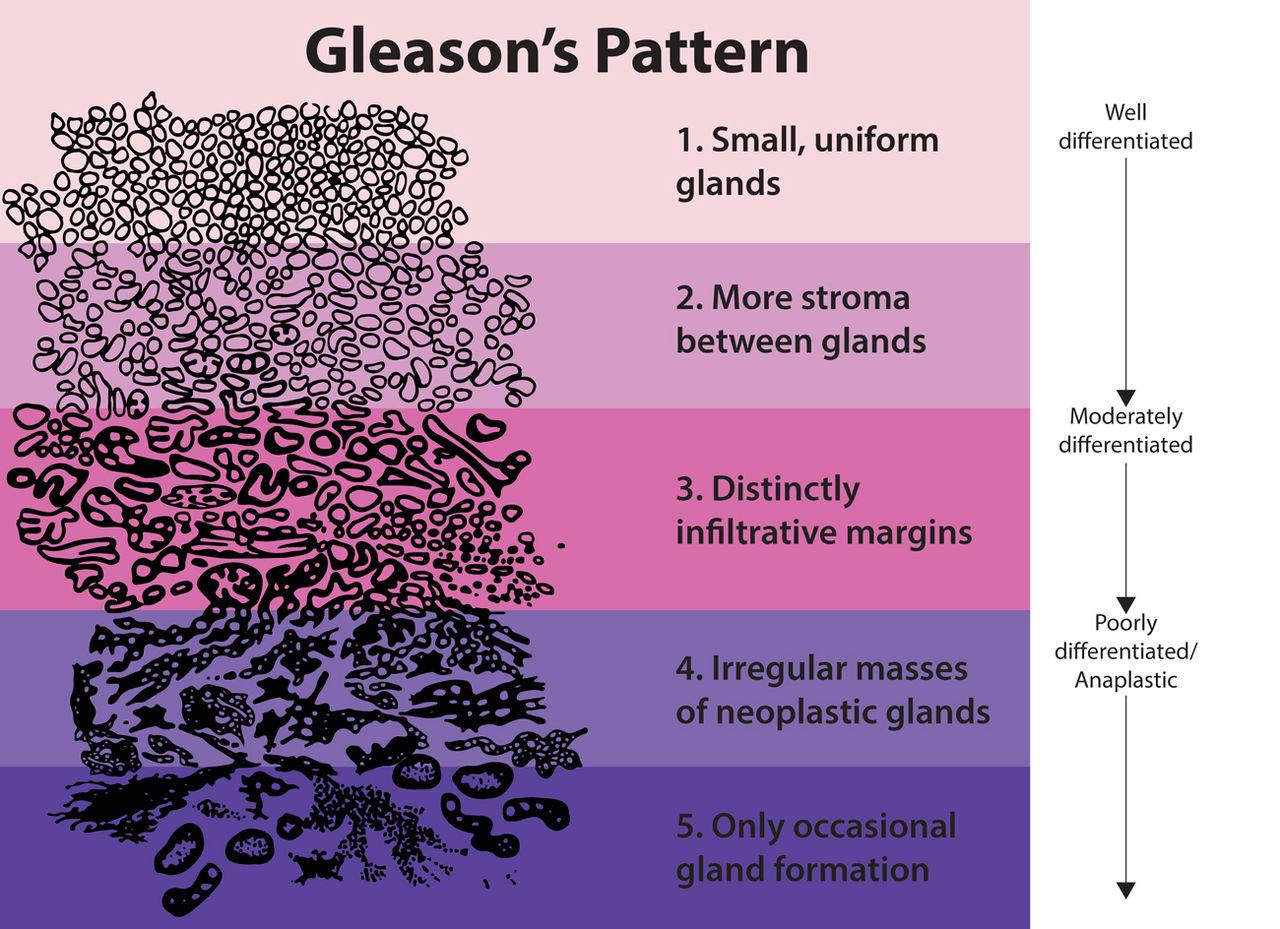 Gleasonscore