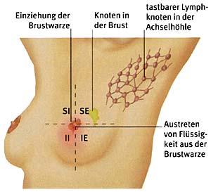 Brustkrebs und DCIS – Ratgeber