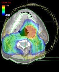 Intensitätsmodulierte Strahlentherapie (IMRT)