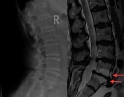 Knochenmetastasen MRT