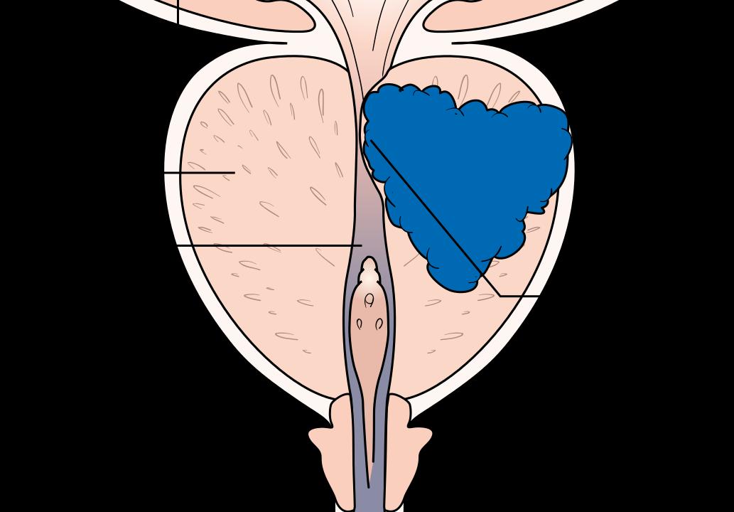 PSA-Wert bei Prostatakrebs