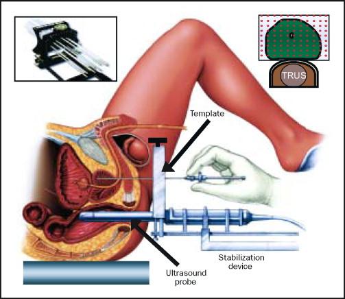 Brachytherapie bei Prostatakrebs