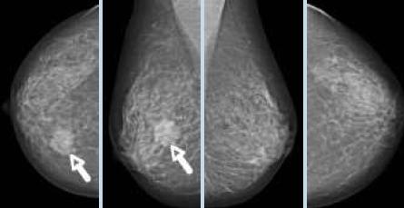 Brustkrebs – Früherkennung