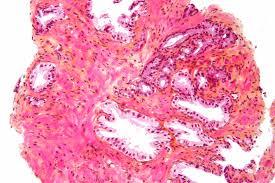 Gleason score bei Prostatakrebs