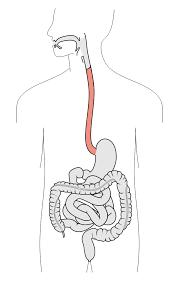 Speiseröhrenkrebs